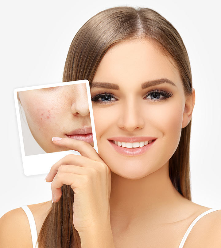 How-To-Get-Rid-Of-Acne-Scars-And-Pimple-Marks