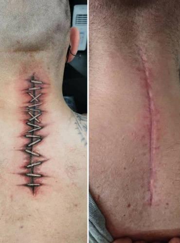 Narbe wird von einem Tattoo verdeckt und verschönert.