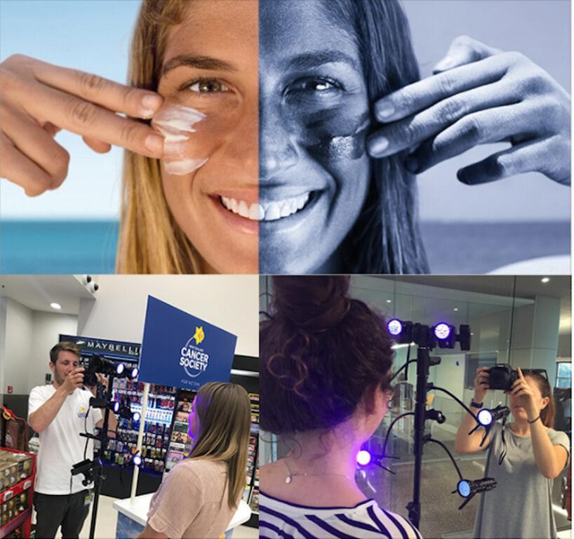 UV Light Camera Development -  Cancer Society