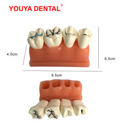 Dental Model Resin 4times Pit And Fissure Sealment Tooth Modeling For Studying Teaching Medical Science Oral Dentistry Products