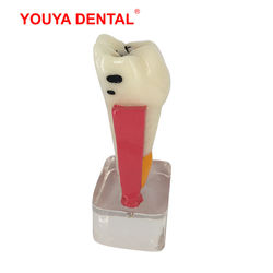 Dental Model Resin 4times Transparent Molar Anatomy Teeth Modeling With Nerves Medical Science Oral Dentist Dentistry Products