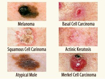 what does a cancerous mole look like?