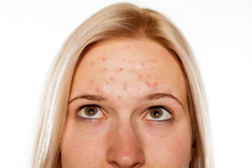 What Causes Acne Pimples