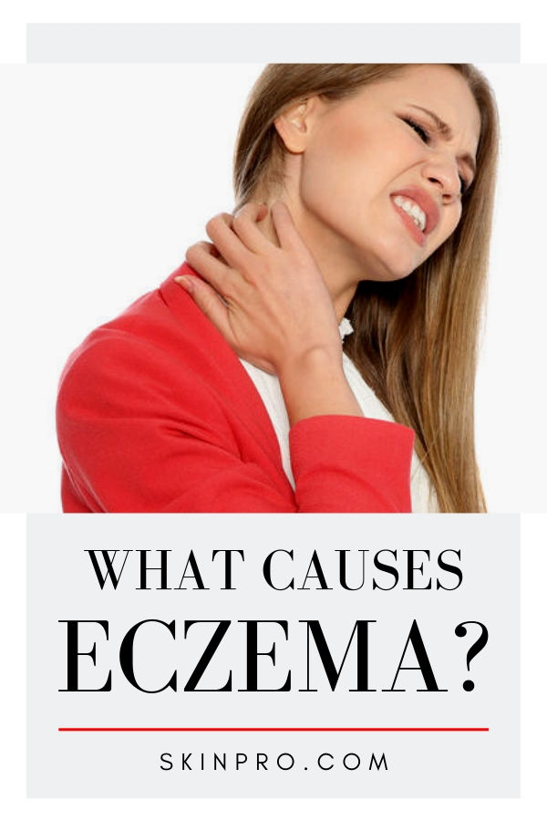 what causes eczeam and how to use cream treatments