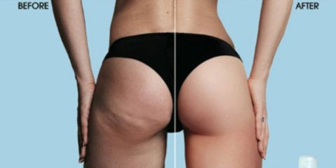 The Cellulite Cup
