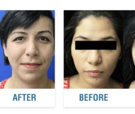 Mardirossian Facial Aesthetics