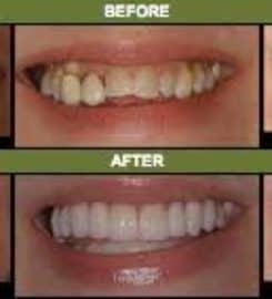 Cottonwood Dental Center