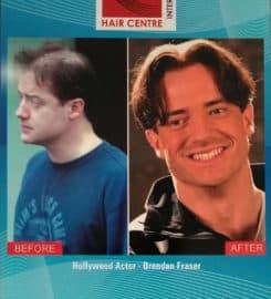 Hair Centre International