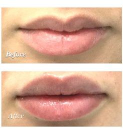 Best Lip Filler & Injections