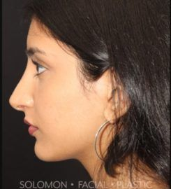 Dr. Philip Solomon MD | Rhinoplasty Toronto