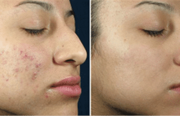 Teen Acne Treatment And Facial