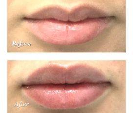 Hyperpigmentation Face & Acne Treatment