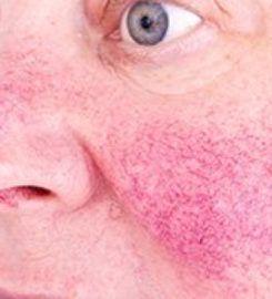 Laser & Mohs Dermatology of NYC