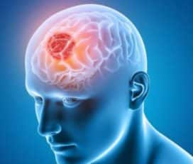 Best Brain Tumor Surgeons in India