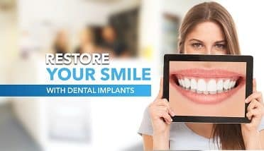 Dental Implant Plus