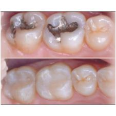 Fillings Or Restorative Dentistry