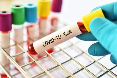 Waspada Virus Corona, Ini Deretan Lokasi Tes COVID-19 di Yogyakarta, Xperience Team