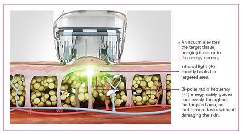 cellulite treatment dubai