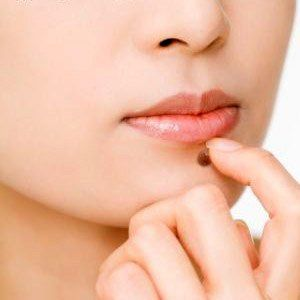 Moles Warts Skin Tags Warts Removal at Wellbeing Medical Centre Dubai
