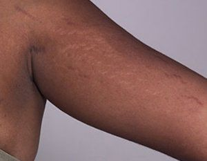 Stretch Marks removal laser PRP Wellbeing Medical Centre Dubai