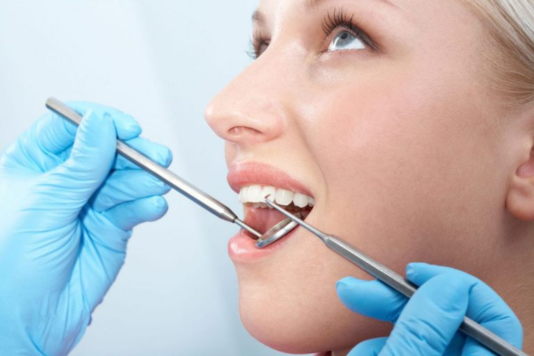 After-care Tips for Root Canal Treatment