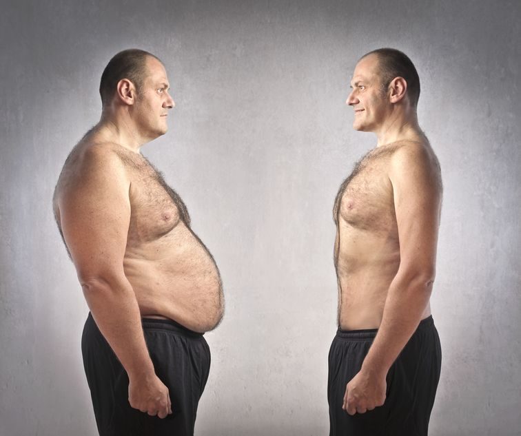 Is Non-Surgical Fat Removal Therapy The Best Choice?