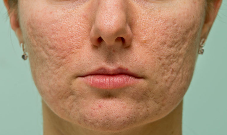 Things to Know About Chemical Peels for Your Melasma Treatment