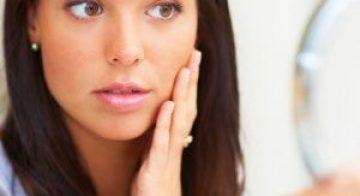 Acne-Scar-Treatment-in-Dubai