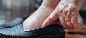 tobillos-hinchados-ancianos