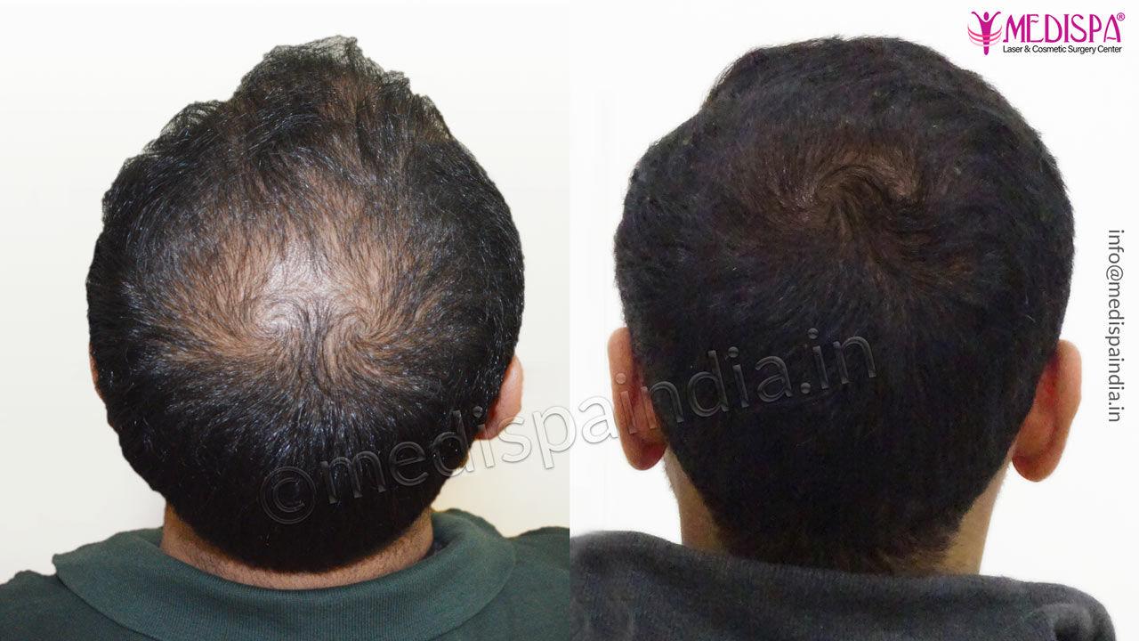 vertex hair transplant india