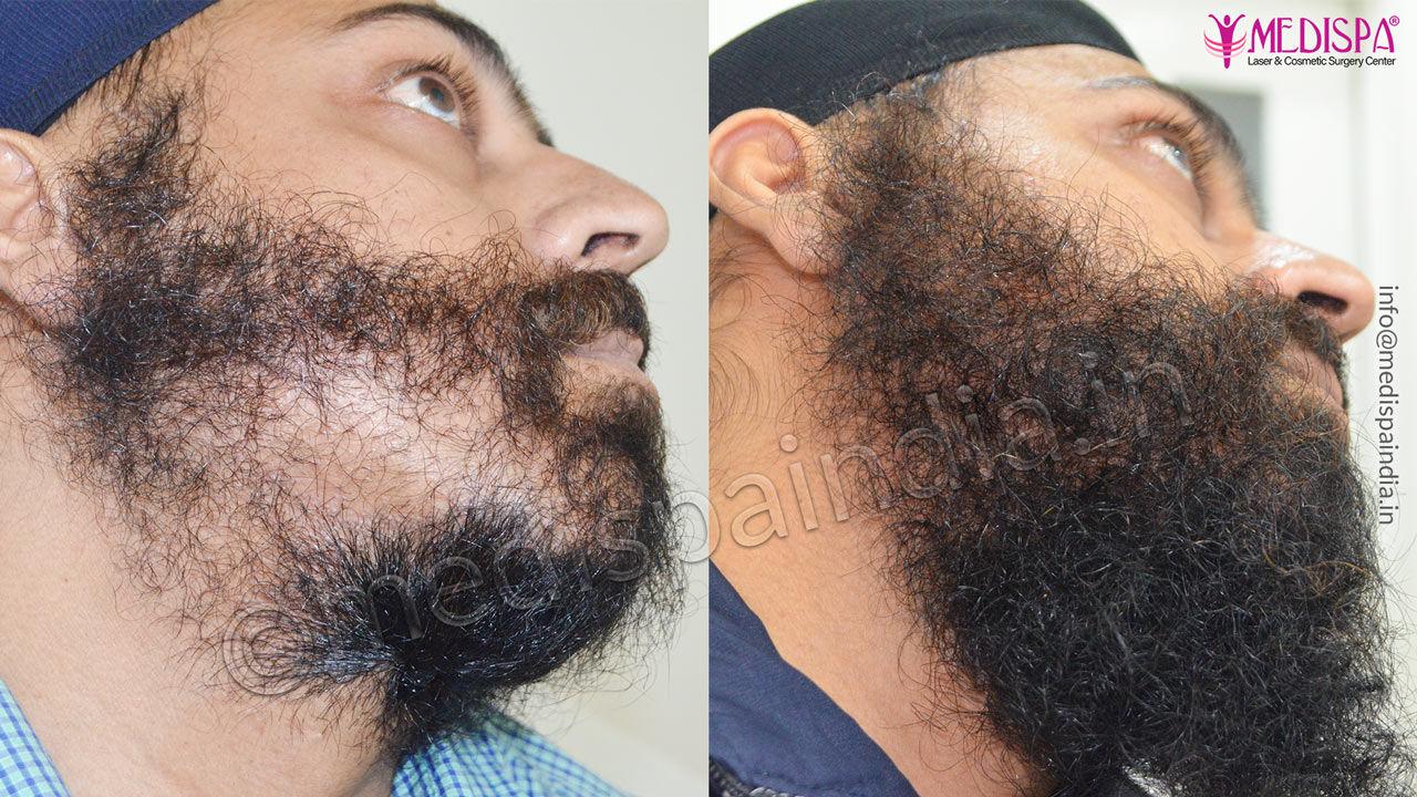 beard hair transplant india