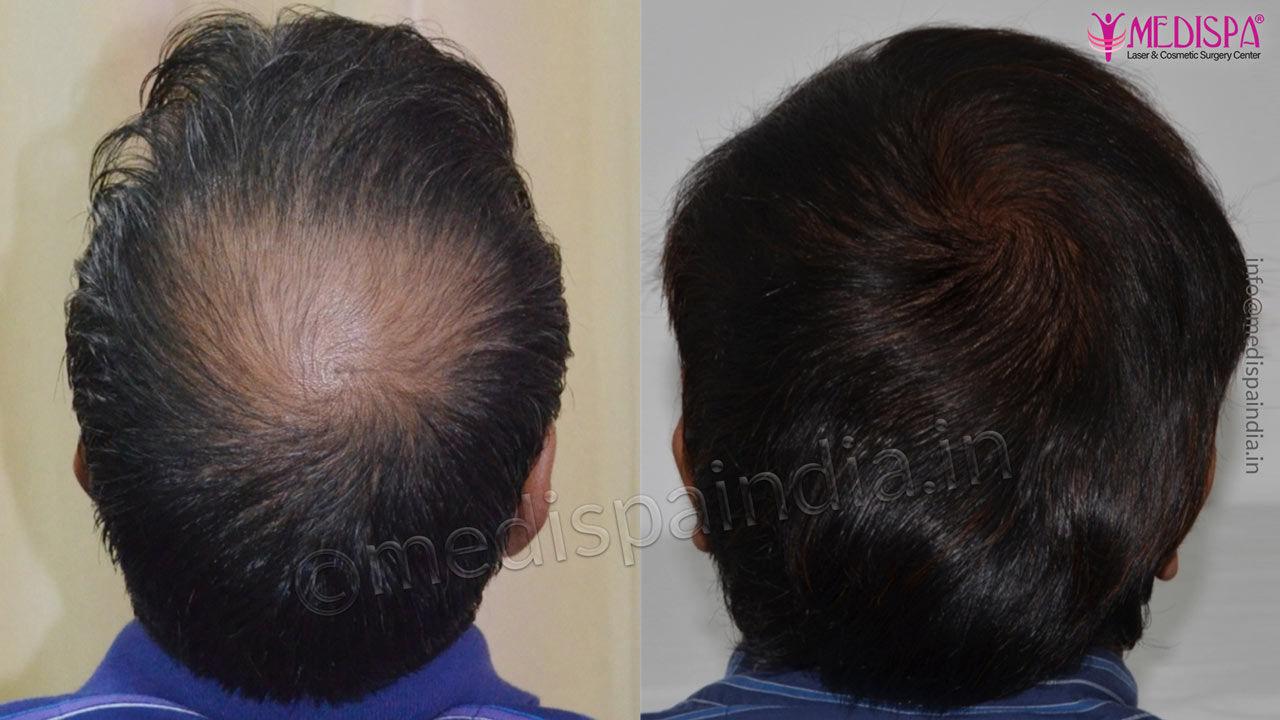 vertex hair transplant results india