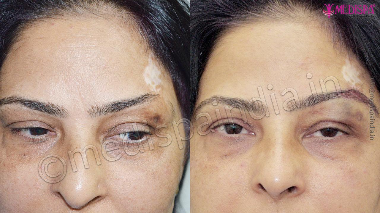 eyebrow hair transplant results india