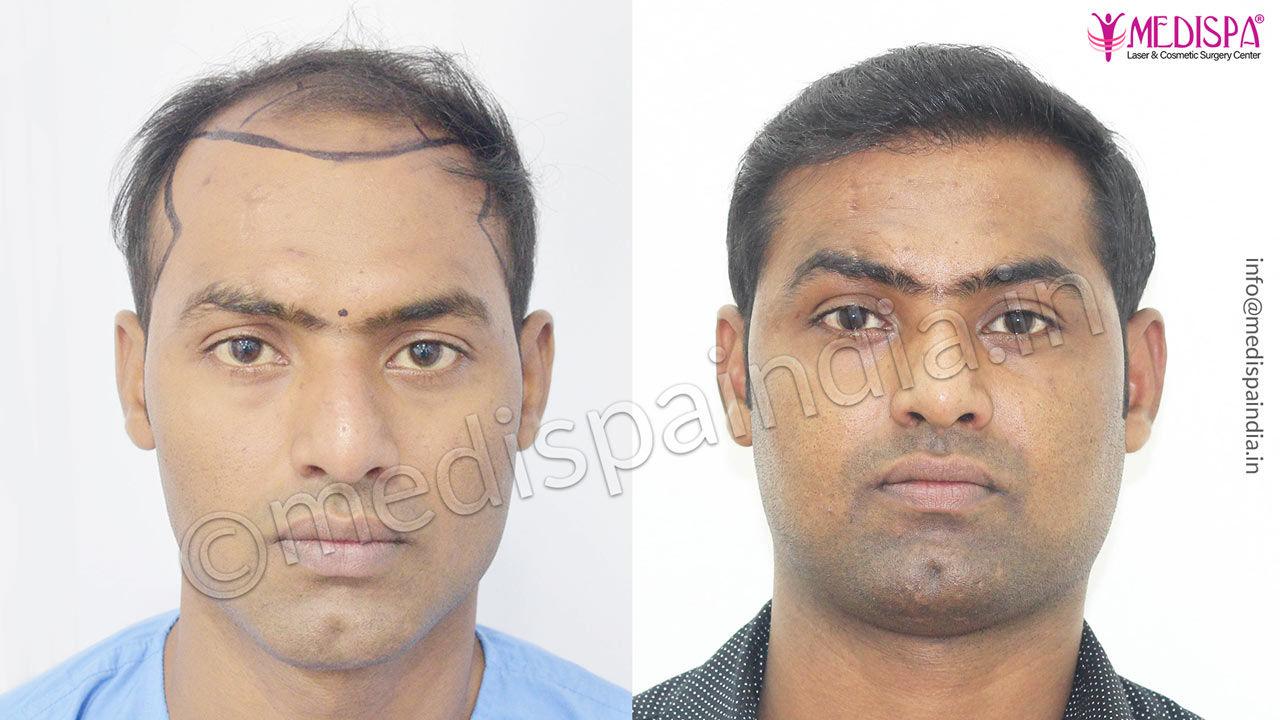 celebrity hair transplant india