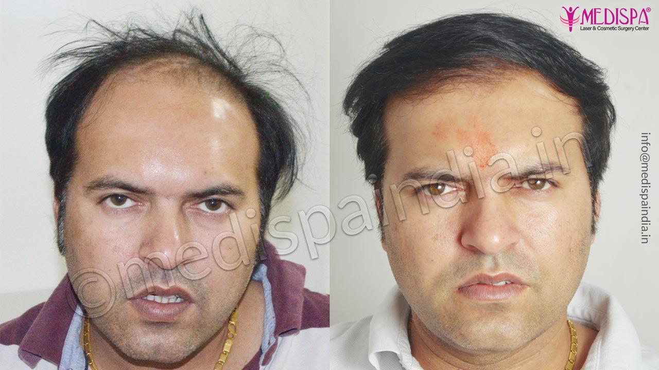 wrong hair transplant correction usa