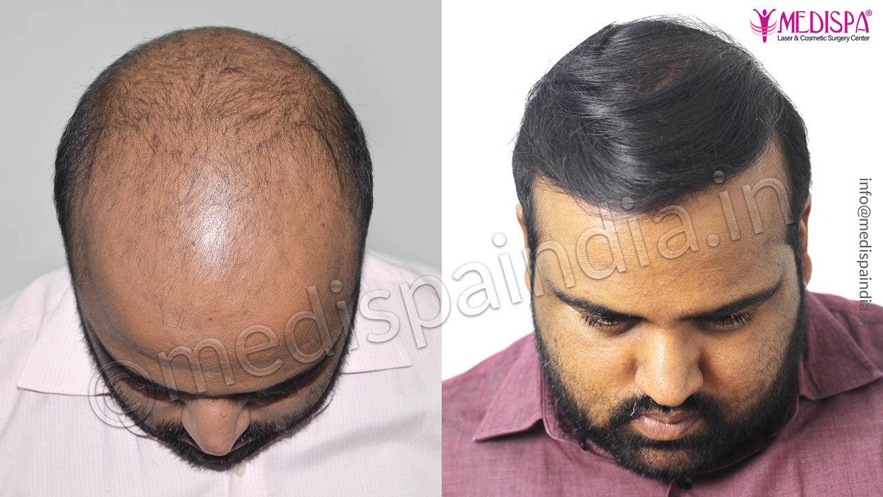 Gurgaon hair transplant result