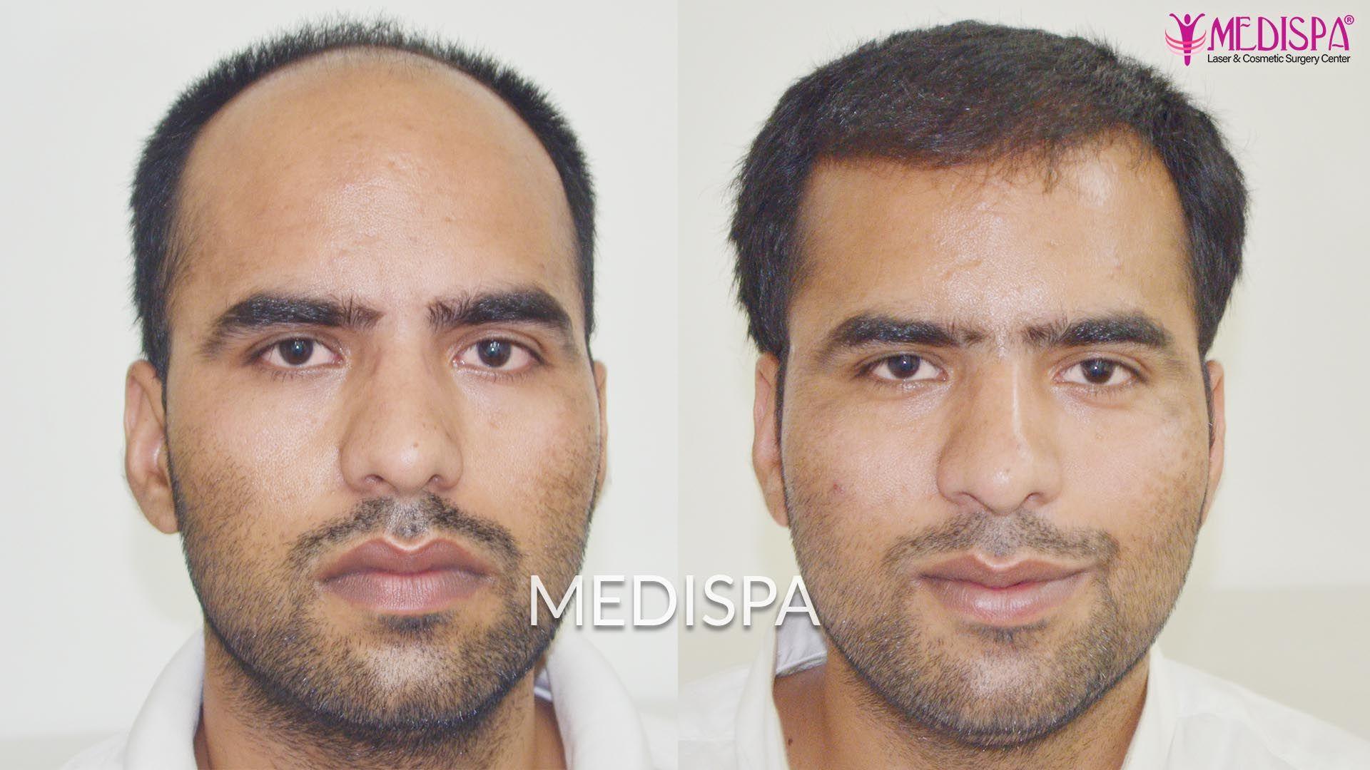 dubai hair transplant result