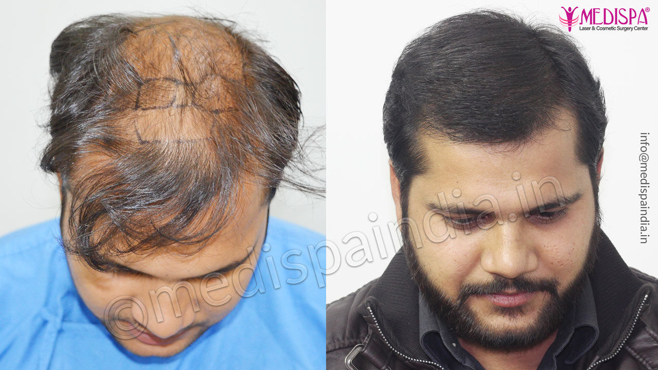cost of hair transplant india