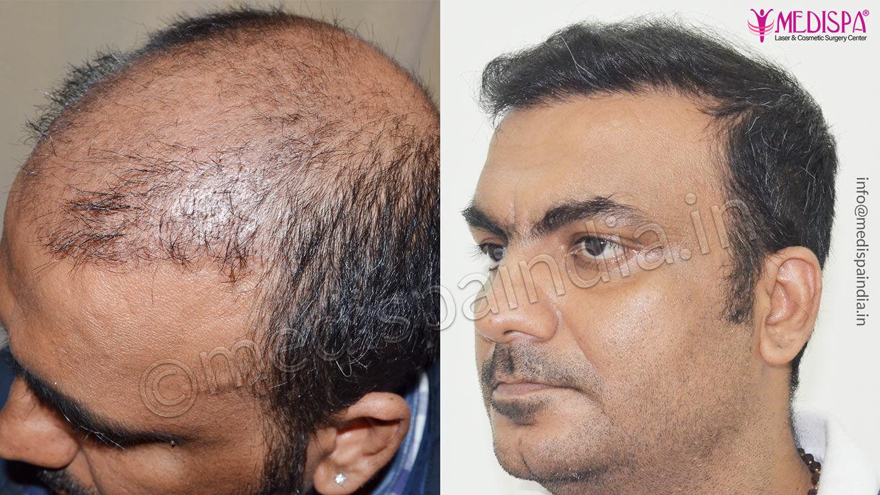 hair transplant in bikaner