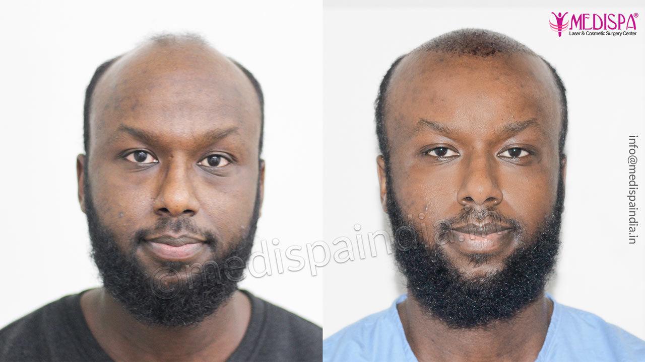 hair transplant sweden results