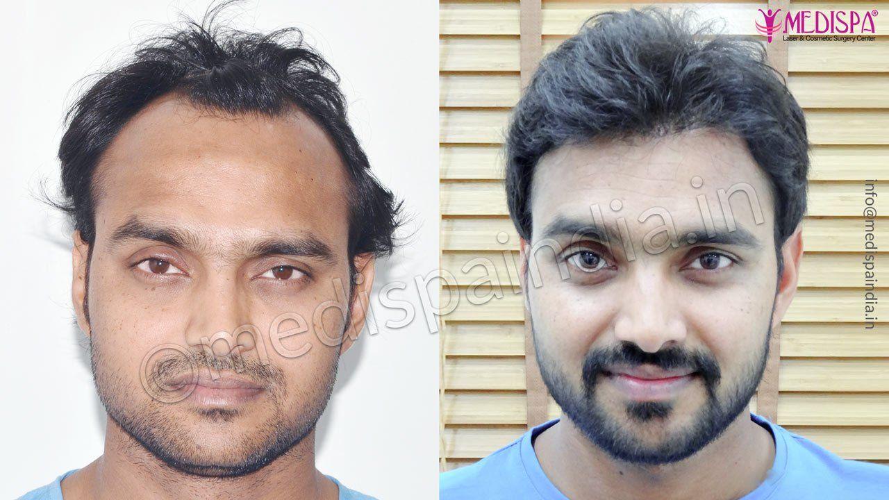 celebrity hair transplant result