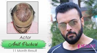 hair transplant in jaipur