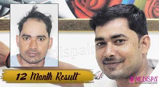 hair restoration jaipur