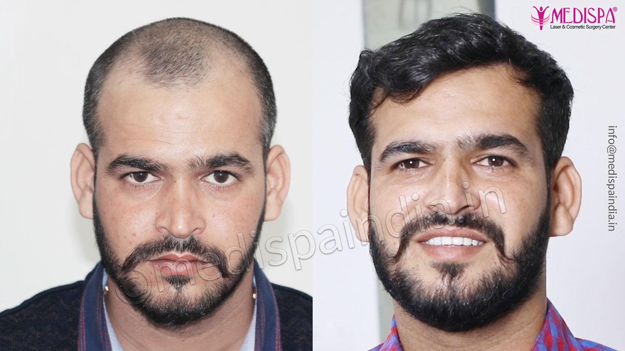 hair transplant delhi cost