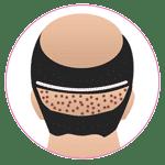 Combine FUT & FUE Hair Transplant in Jaipur