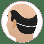 FUT Hair Transplant in Jaipur