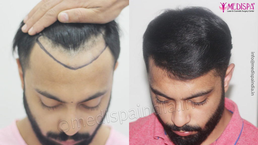 Hair Transplant In India Hair Transplant Clinic In India