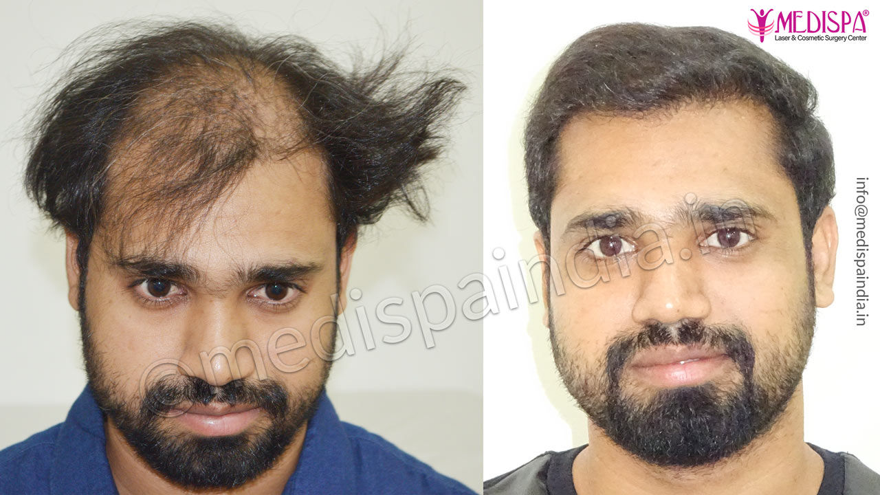 Best Hair Transplant After 6 Month Results Medispa India