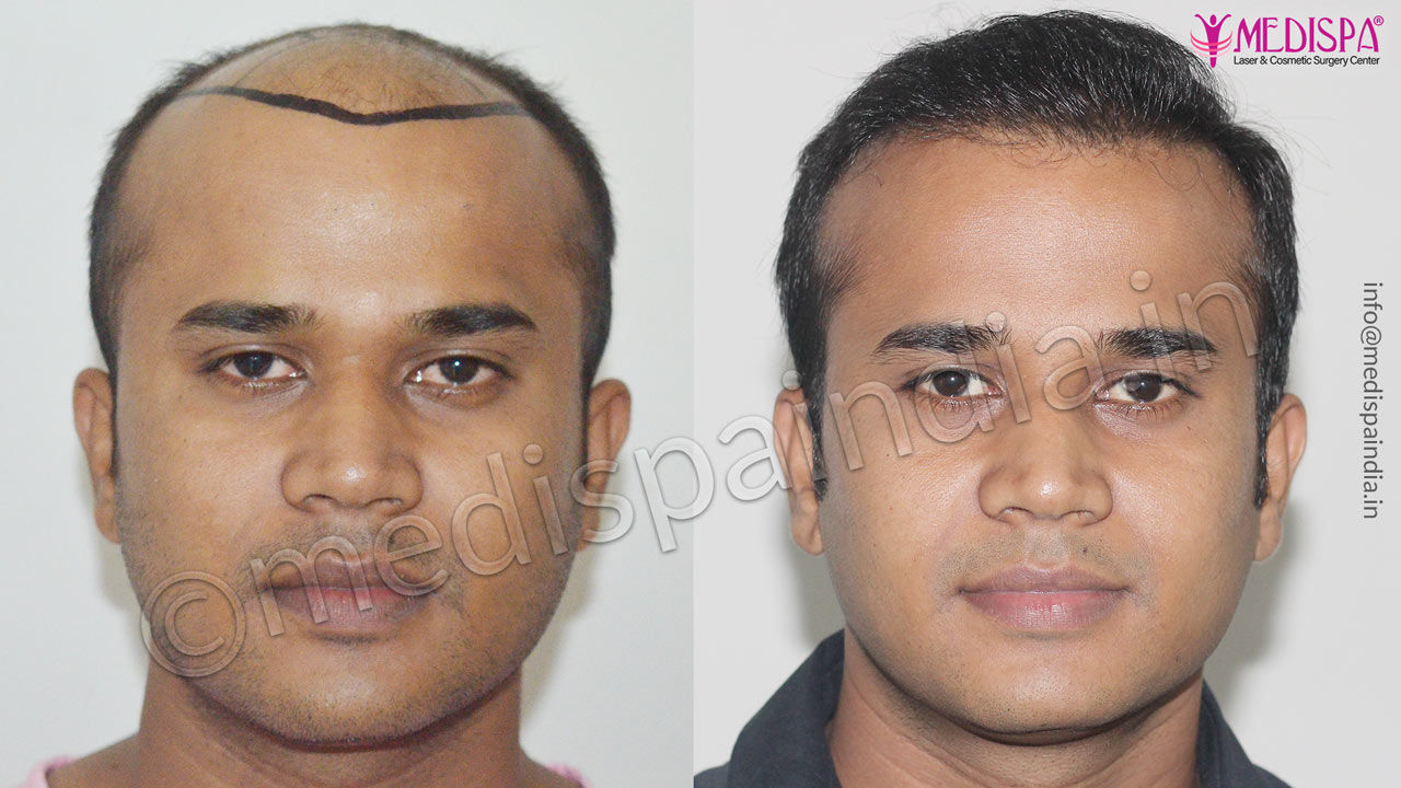 Male Hair Transplant Photo Gallery 5 Top Hair Transplant Center