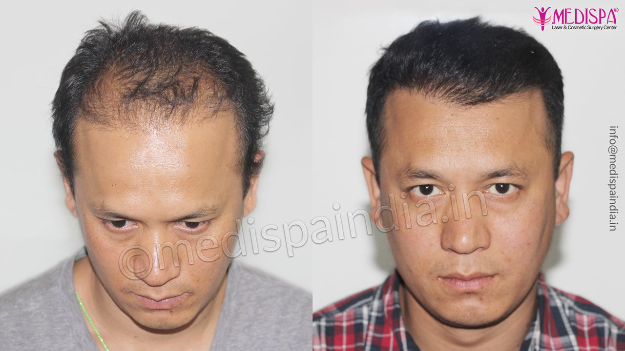 Hair Transplant Cost In Rajathan Affordable Hair Transplant Cost